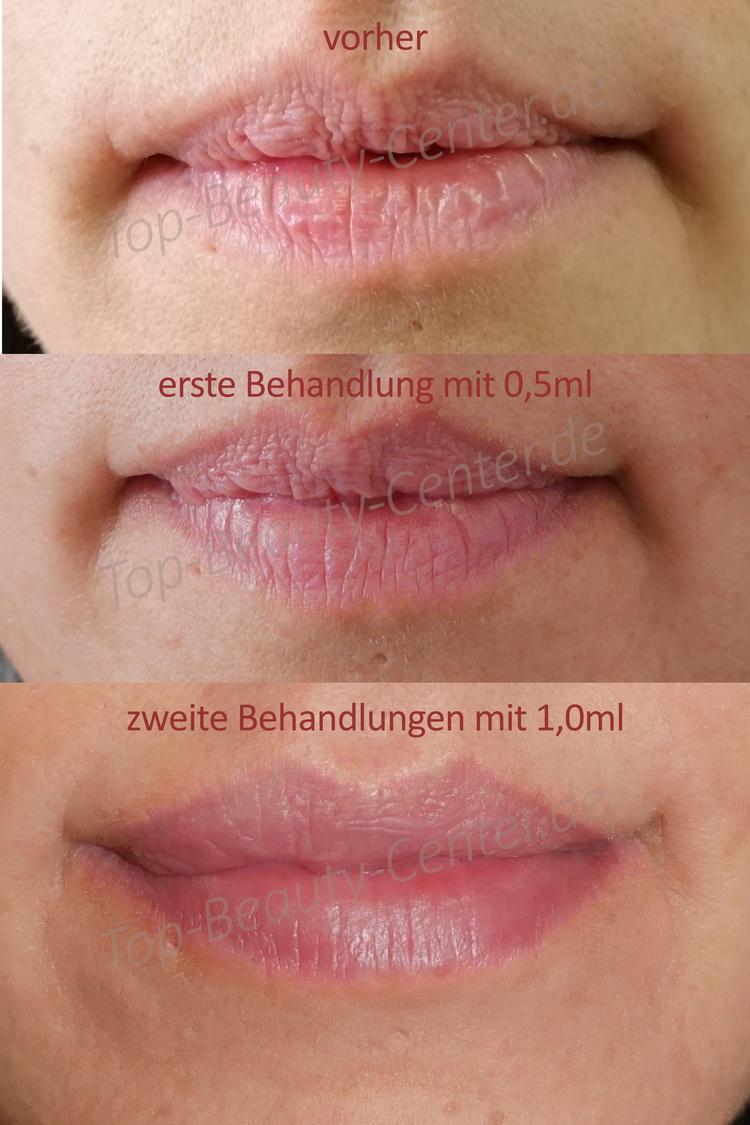 Lippen schwellen an