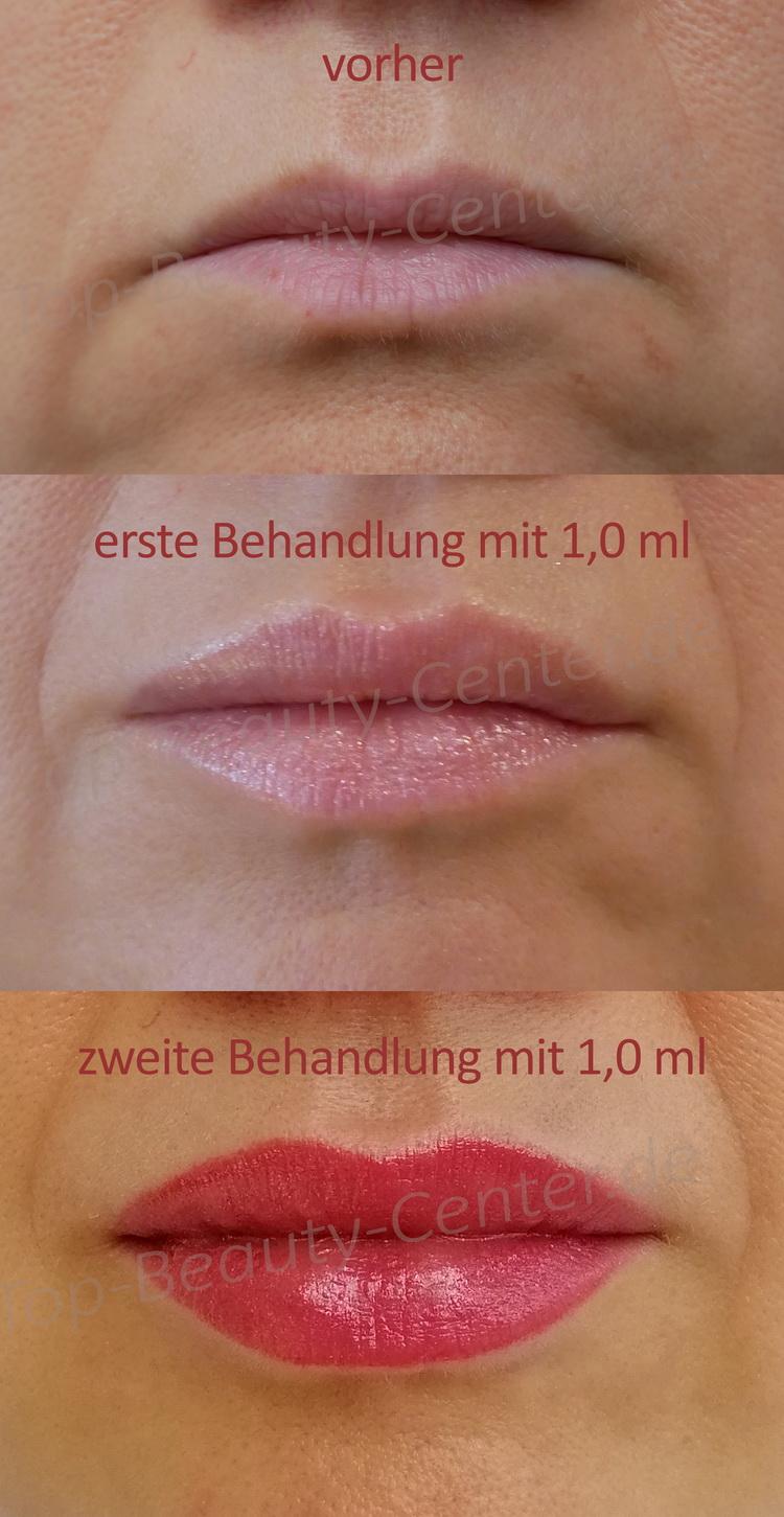 An lippen schwellen Der natürliche